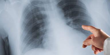 """Lungenkrebspatienten """"top"""" versorgt"""