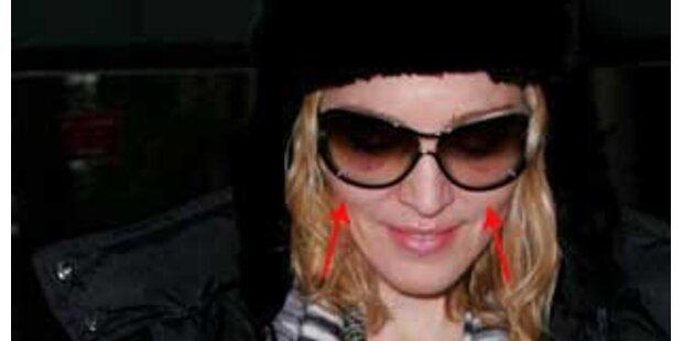 Veilchen! Hatte Madonna eine Schönheits-OP?