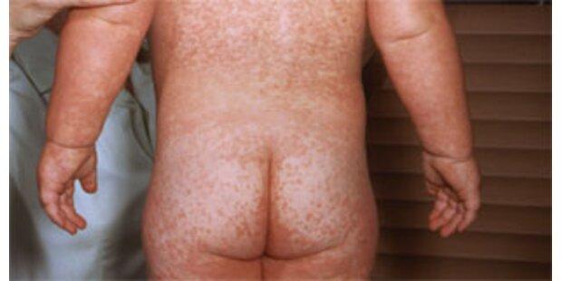 Melde-Register für Infektionskrankheiten ist fix