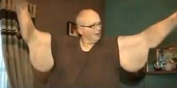 Dickster Mann der Welt nimmt 285 Kilo ab