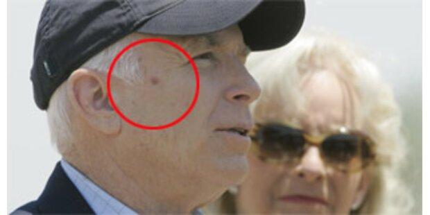 Hat McCain Hautkrebs?
