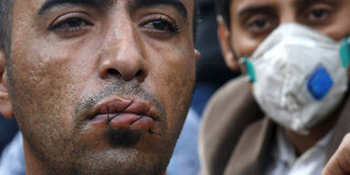 Aus Protest: Flüchtlinge nähen sich Mund zu