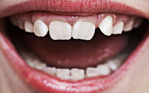 Weichmacher schuld an schlechten Zähnen?