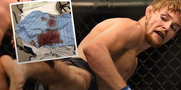 MMA-Fighter mit Horror-Unfall im Intim-Bereich