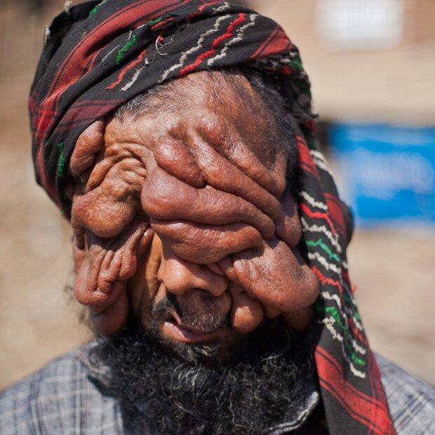 Gesicht Mann Mann Ohne Gesicht Wird Vater