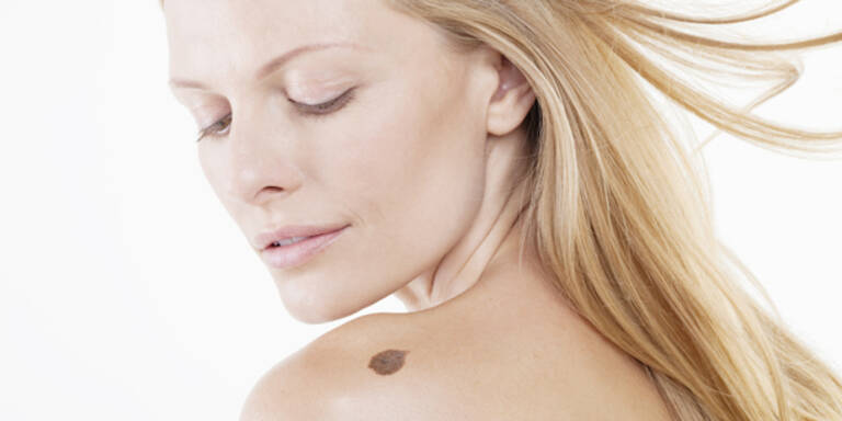 Hautkrebs-Diagnose per Infrarotkamera