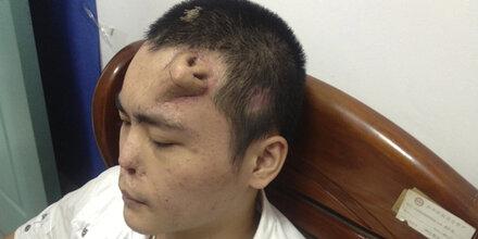 China: Neue Nase wächst auf Stirn