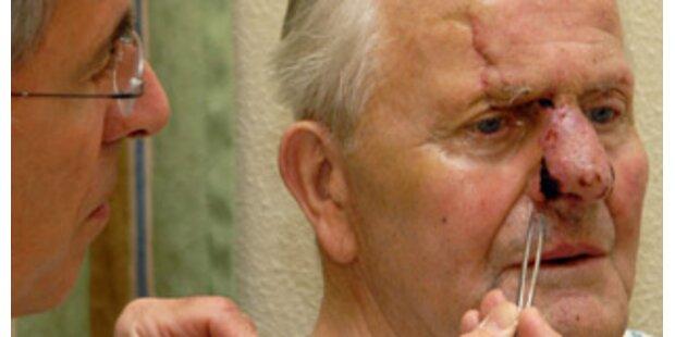 Ärzte nähten Oberösterreicher abgerissene Nase wieder an