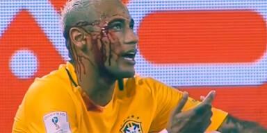 Neymar blutüberströmt vom Platz getragen