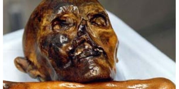 Ötzi erlitt Schädel-Hirntrauma