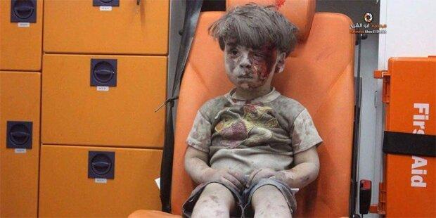 Foto ging um die Welt: So sieht der kleine Omran heute aus