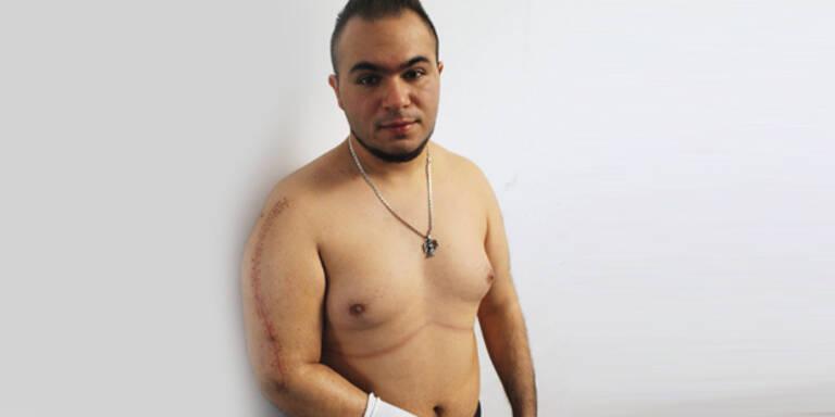 "Opfer klagt: ""Polizist brach mir den Arm"""