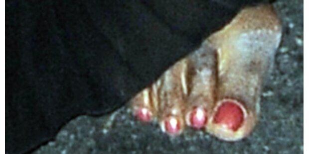 Welchem Mega-Promi gehört dieser verbeulte Fuß?