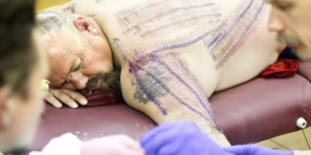 Dieser Mann hat 1.501 Nadeln im Körper