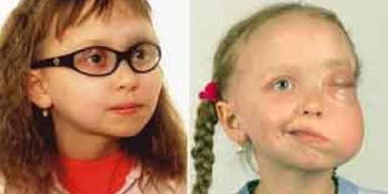 Die achtjährige Monika vor (r.) und nach der  Operation