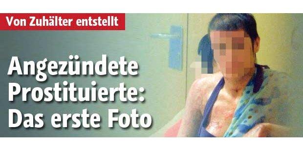 Angezündete Prostituierte vor Gericht