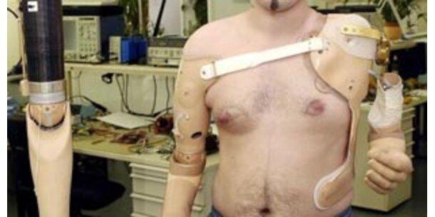 Wiener entwickeln gedankengesteuerte Armprothese
