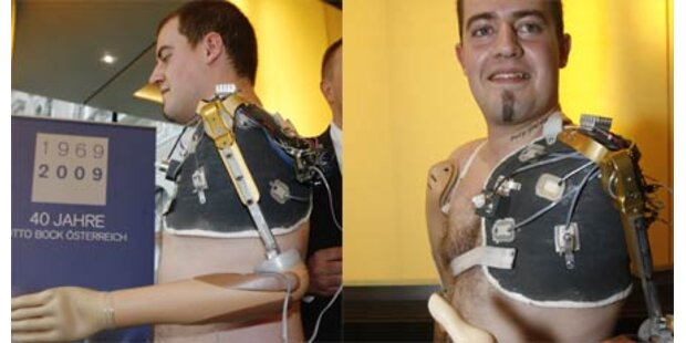 Mit Armprothese wieder fühlen können