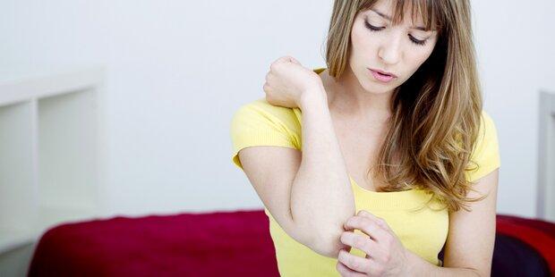 Psoriasis belastet Patienten oft schwer
