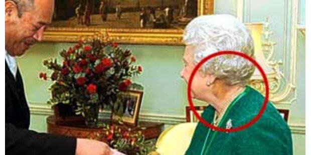 Queen hat geheimnisvolle blaue Flecken am Nacken