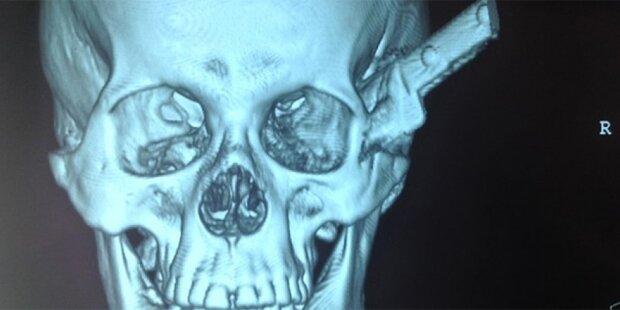 Mann fuhr mit Messer im Kopf ins Spital