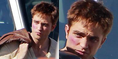Robert Pattinson - Schlimm verprügelt