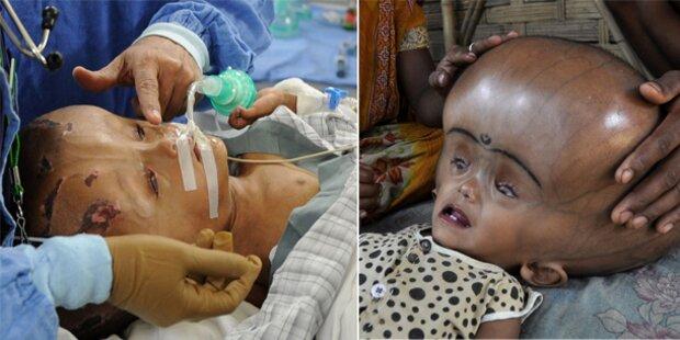 Mädchen mit Wasserkopf operiert
