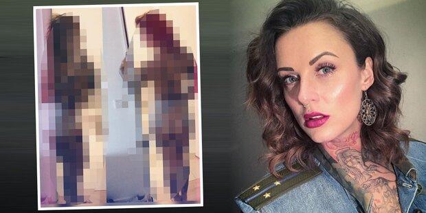 Nach Intim-OP: Kult-Sängerin mit Nackt-Selfie