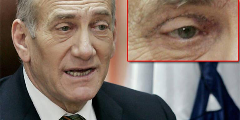 Der israelische Ministerpräsident Ehud Olmert hat sich einer Schönheits-OP unterzogen. Die Narben sieht man noch. (c) Reuters