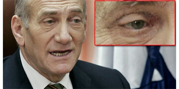 Israels Premier ließ sich die Augenlider straffen