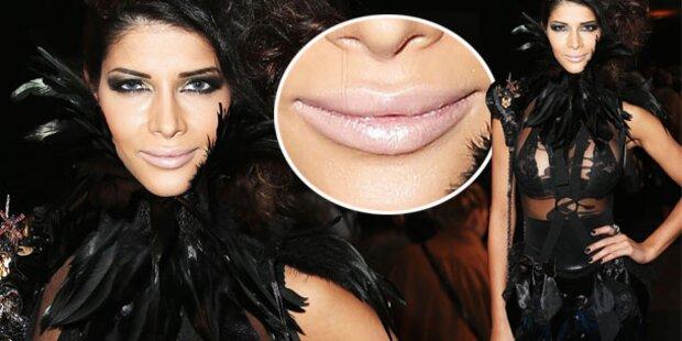Schäfer: Volle Lippen dank Beauty-Doc?