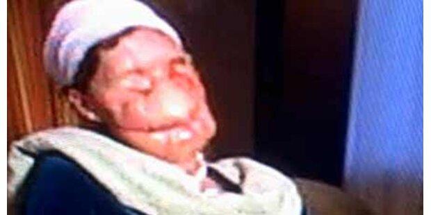 Affe zerfleischt dieser Frau das Gesicht