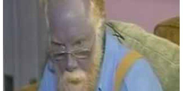 Mann lebt seit 40 Jahren mit blauem Gesicht