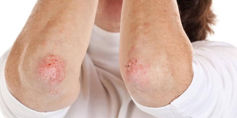 Psoriasis: Hautkrankheit mit Tücken