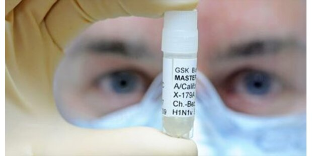 Tiroler Rekrut hat Schweinegrippe