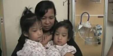 Ärzte trennen siamesische Zwillinge