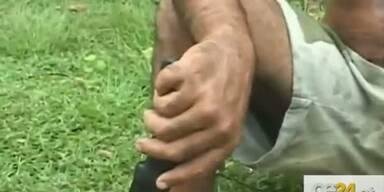 Kubaner hat 12 Finger und 12 Zehen