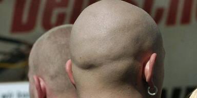 skinhead_