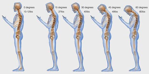 So ruiniert das Handy Ihre Wirbelsäule