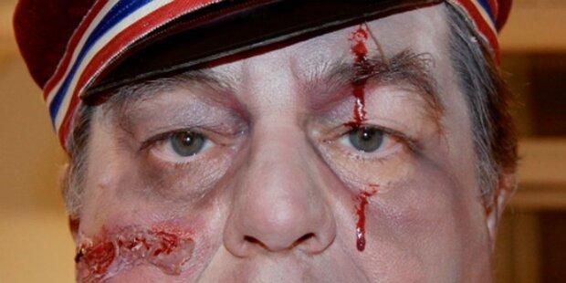 Blutig: Steinhauer als Burschenschafter