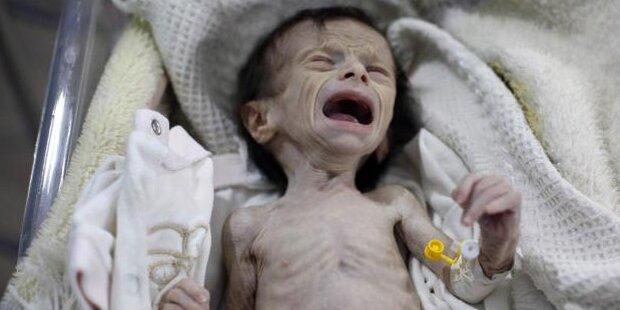 Die hungernden Babys von Syrien