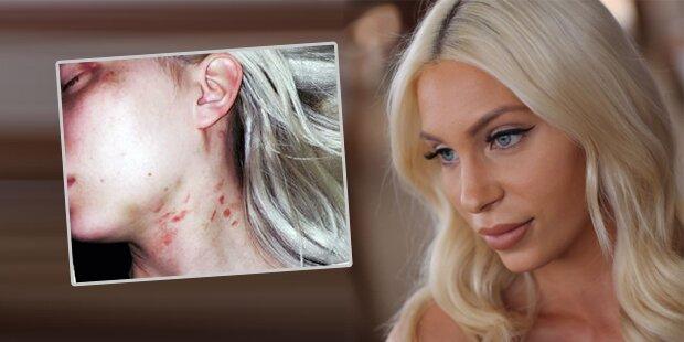 ATV-Star Tara brutal misshandelt