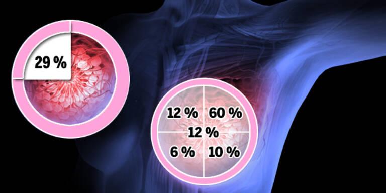 Brustkrebs-Screenings zeigen Erfolg
