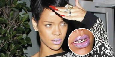 Rihanna  zeigt sich mit  Gold-Gebiss