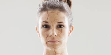 Was hilft bei trockener Haut?