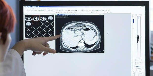 Graz: Ärzte entfernten kiloschweren Tumor