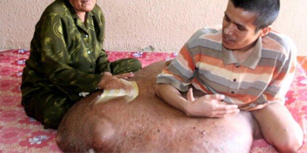 90 Kilo-Tumor wird endlich entfernt
