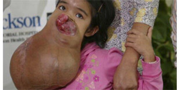15-Jähriger soll Fünf-Kilo-Tumor entfernt werden