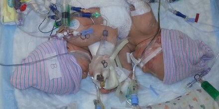 Siamesische Zwillinge kämpfen ums Überleben