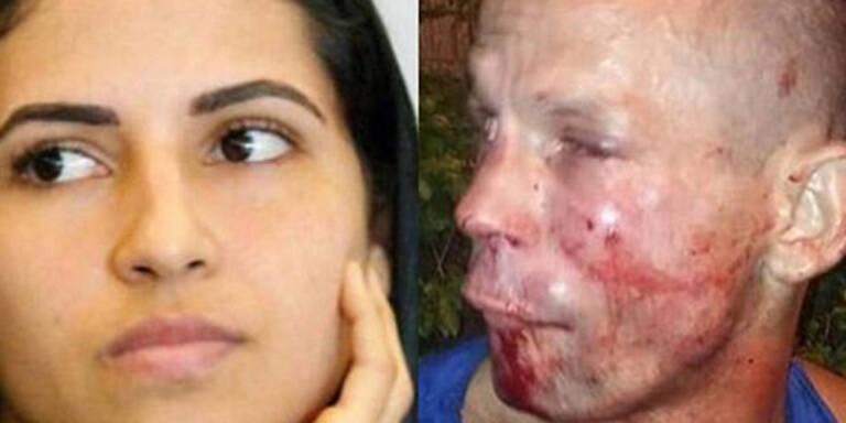Dieb von UFC-Kämpferin krankenhausreif geprügelt
